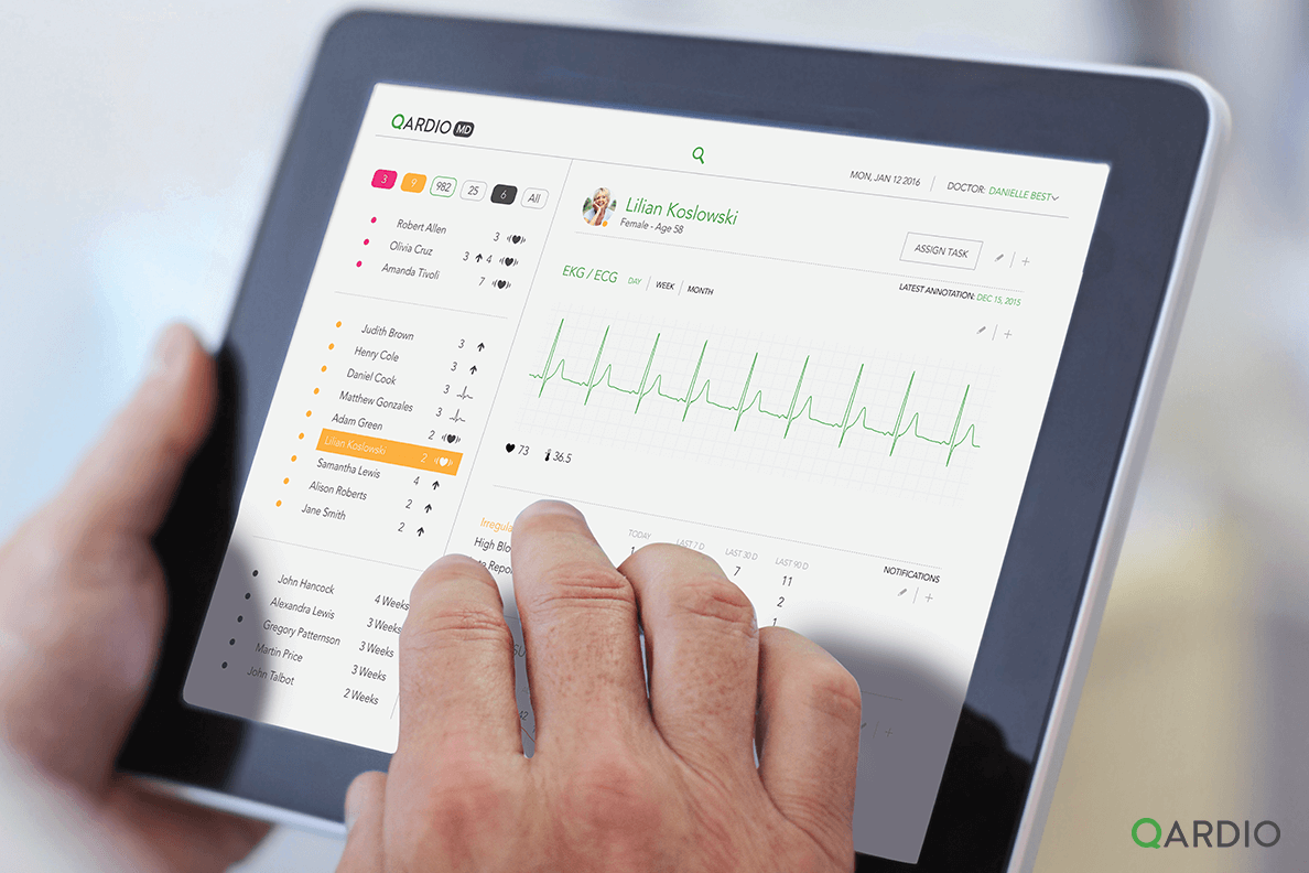 How does ECG/EKG work and what is an ECG/EKG monitor?