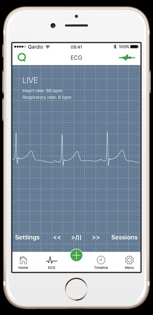 ECG/EKG Trace Qardio App