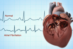 9 things you should know about atrial fibrillation